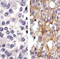Target therapies directed toward genetic mutations that drive a tumor's growth have significantly improved the outlook