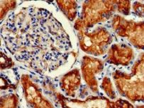 IHC validation of PODXL antibody