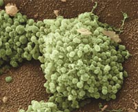 the image of gonorrhea