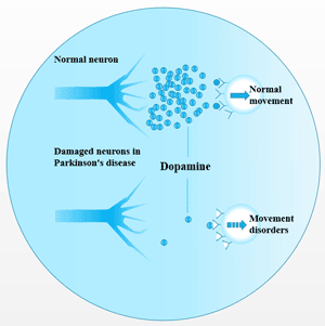 The absence of neurotransmitter dopamine is the main cause of Parkinson's disease