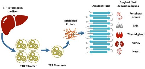 The pathogenesis of transthyretin familial amyloid polyneuropathy