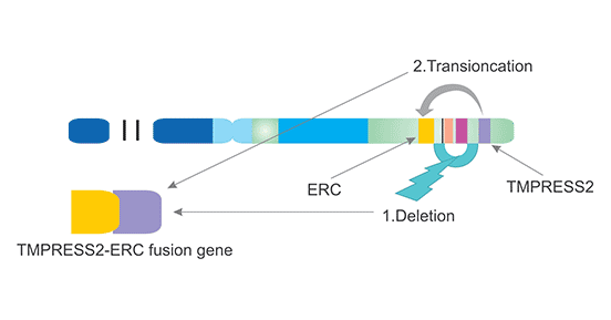 Mechanism of TMPRESS2-ERG fusion (chromosome 21)
