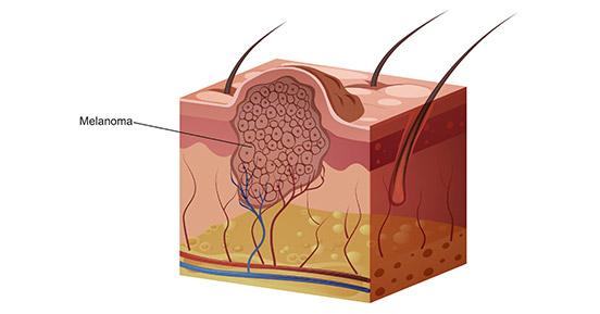 a diagram of melanoma