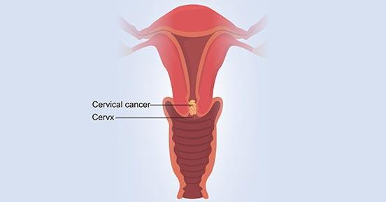 a diagram of cervical cancer