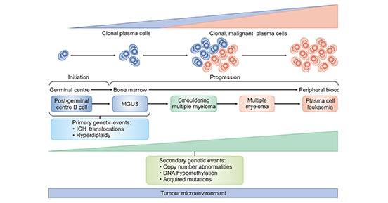 The Development of Multiple Myeloma