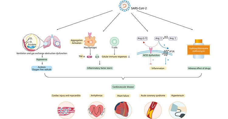 Cardiovascular involvement in COVID-19 – key manifestations and hypothetical mechanisms