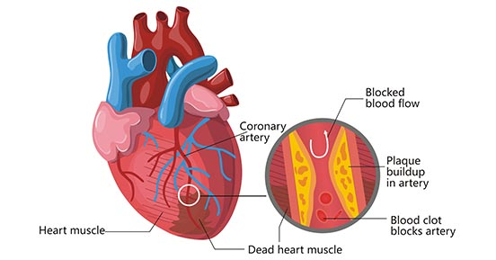 The diagram of heart attack