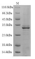The SDS-PAGE of Recombinant Human CD19
