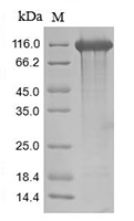 The SDS-PAGE of Recombinant Human CD22