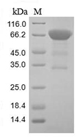 The SDS-PAGE of Recombinant Human CD133