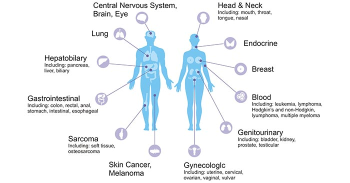 The distribution of cancers in human