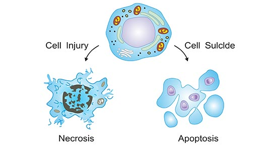 The two ways of cell death