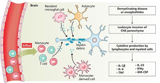 The diagram of neuroinflammation