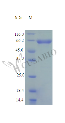 SDS-PAGE- Recombinant protein Human ME2