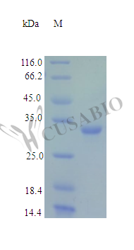 SDS-PAGE- Recombinant protein Human TIGAR