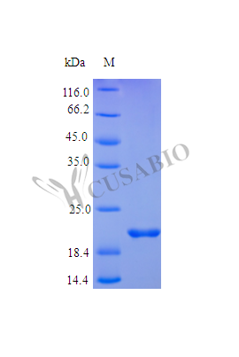 SDS-PAGE- Recombinant protein Human TNFRSF1A