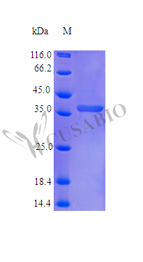 SDS-PAGE- Recombinant protein Human NOV