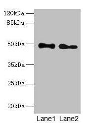 Western Blotting(WB) - ABHD2 Antibody