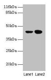 Western Blotting(WB) - CCR6 Antibody