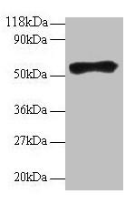Western Blotting(WB) - IgG Antibody