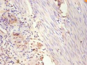 Immunohistochemistry(IHC) 1- ESR1 Antibody