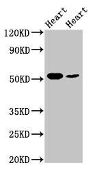 Western Blotting(WB) - ILK Antibody