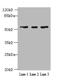 Western Blotting(WB) - IFIT5 Antibody