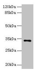 Western Blotting(WB) - NAT2 Antibody