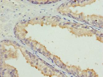 Immunohistochemistry(IHC) 2- HMGB1 Antibody