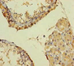 Immunohistochemistry(IHC) 2- SMARCA2 Antibody