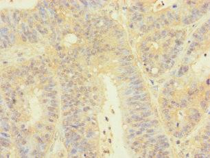 Immunohistochemistry(IHC) 2- TGFB3 Antibody
