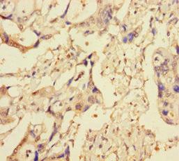 Immunohistochemistry(IHC) 1- XIAP Antibody