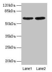 Western Blotting(WB) 2- NELFB Antibody