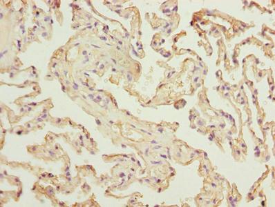 Immunohistochemistry(IHC) 1- RAD23A Antibody