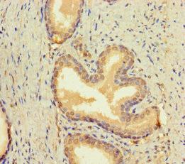 Immunohistochemistry(IHC) 1- BMP4 Antibody
