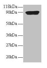 Western Blotting(WB) - CXCL5 Antibody