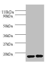 Western Blotting(WB) - IL1RN Antibody