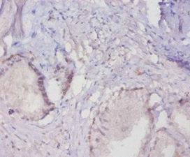 Immunohistochemistry(IHC) 1- MUC16 Antibody