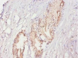 Immunohistochemistry(IHC) 1- ACPP Antibody