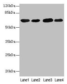Western Blotting(WB) - ESR1 Antibody