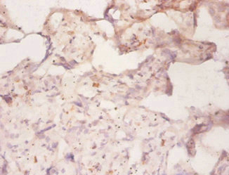 Immunohistochemistry(IHC) 1- ABCB1 Antibody