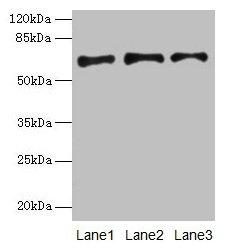 Western Blotting(WB) - PLAT Antibody