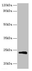Western Blotting(WB) - M Antibody