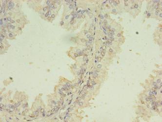 Immunohistochemistry(IHC) 1- SNRPB2 Antibody