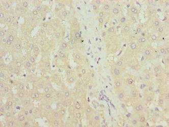Immunohistochemistry(IHC) 1- TXNRD1 Antibody