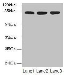 Western Blotting(WB) - ACAP1 Antibody