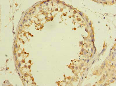 Immunohistochemistry(IHC) 2- AARSD1 Antibody