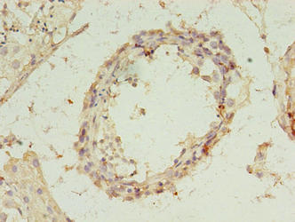 Immunohistochemistry(IHC) 1- REXO4 Antibody