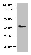 Western Blotting(WB) - AASDHPPT Antibody