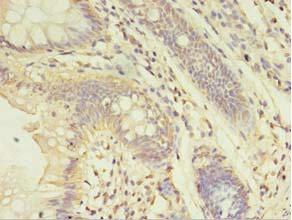 Immunohistochemistry(IHC) 2- ABHD14A Antibody